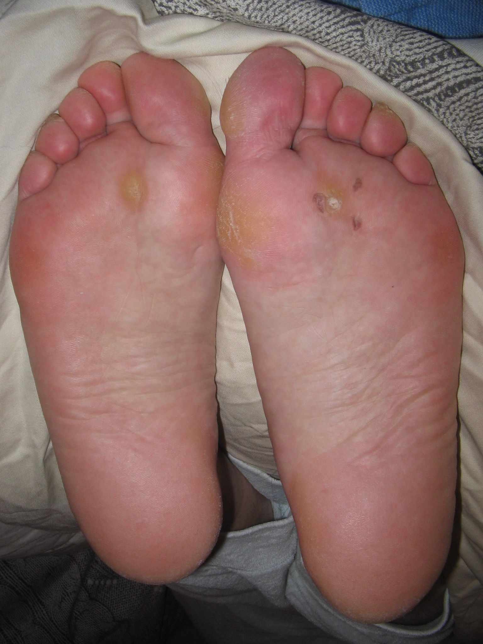 dry cracked and callused feet to repair with foot peel mask